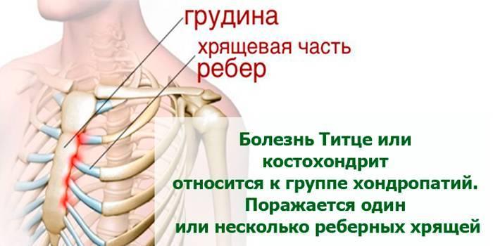 Чому болять груди