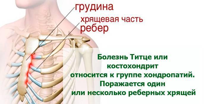 Чому болять ребра – можливі причини та прояви