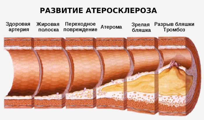 Корисні властивості чайного гриба для здоров'я