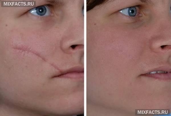 Лазерне видалення шрамів та шліфування рубців після процедури