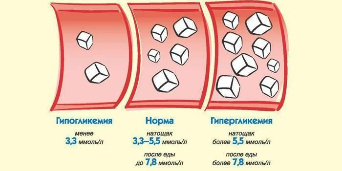 Ніж швидко підняти рівень глюкози в крові при гіпоглікемії