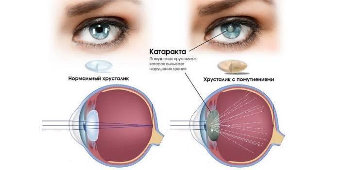 Перші симптоми погіршення зору