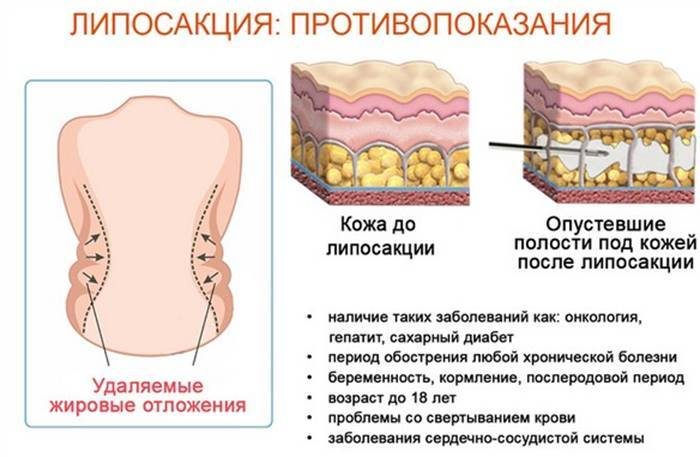 Показання і вартість операції з ліпосакції живота