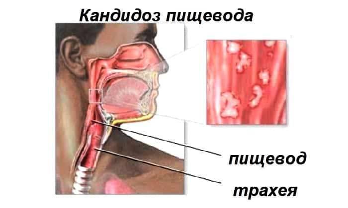 Причини болю в грудях при ковтанні