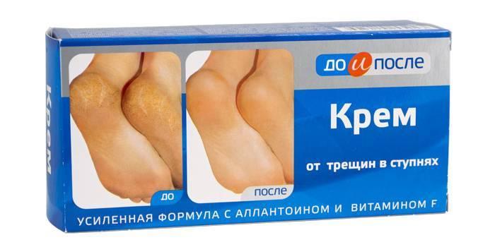 Рейтинг кращих засобів від тріщин на п'ятах, пом'якшують шкіру
