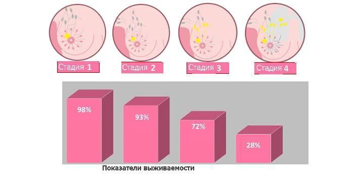 Стадії і ступеня розвитку ракових захворювань