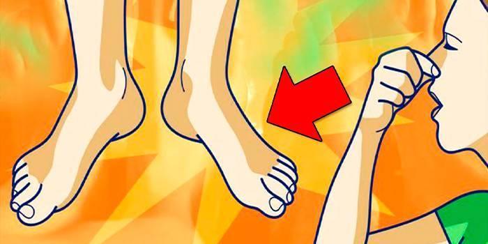 Засобу при підвищеному потовиділенні в ногах